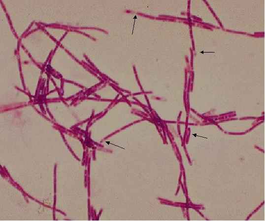 B Anthracis Bacteriology 5 G+ baci...