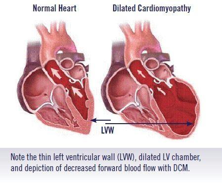 Cardiovascular Pharm 2