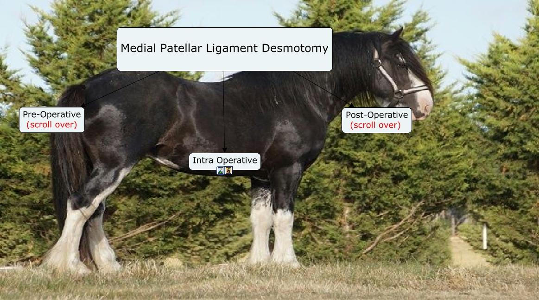 Medial Patellar Ligament Desmotomy